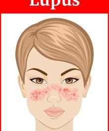 butterfly rash lupus