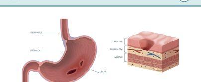 Peptic ulcer nausea