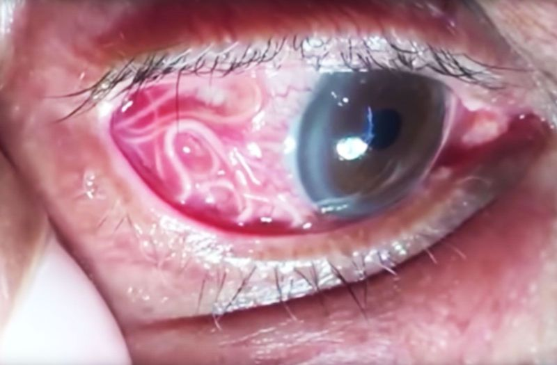 Image result for india 15cm under eye