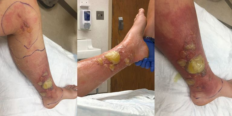 Wild Parsnip Plant Gives Vermont Woman Severe Blisters