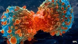 _69325274_m1320644-lung_cancer_cell_division,_sem-spl