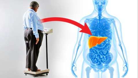 New obesity treatment lowers body weight in animal study
