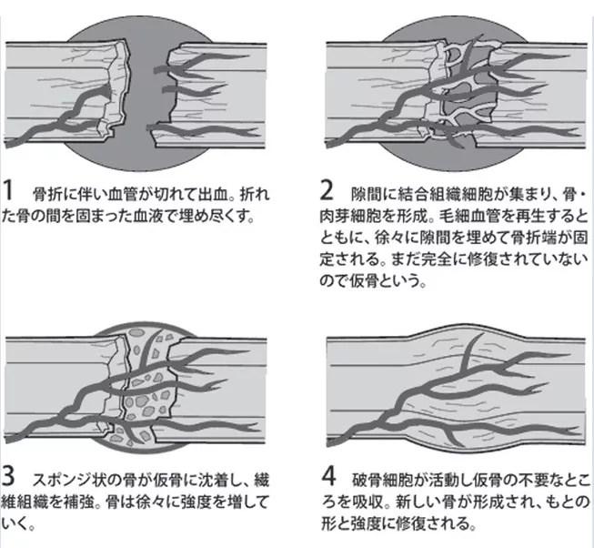 骨の修復過程