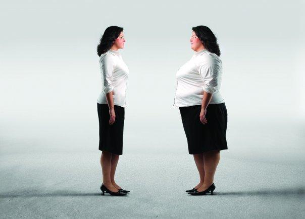 Obezite ve Metabolik Hastalıklar Cerrahisi (Bariatrik Cerrahi)