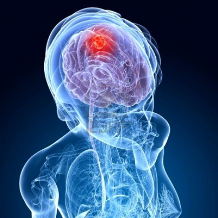 Nöro-onkolojik Cerrahi