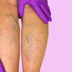 It Is Possible To Get Rid Of Your Varicose Veins Without Surgery!