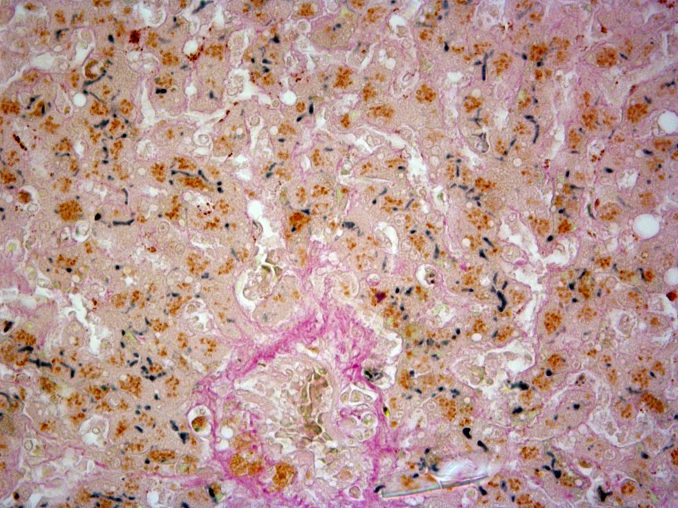 microscopic liver stained with Hall's method for Bile