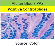 AB PAS Control Slides