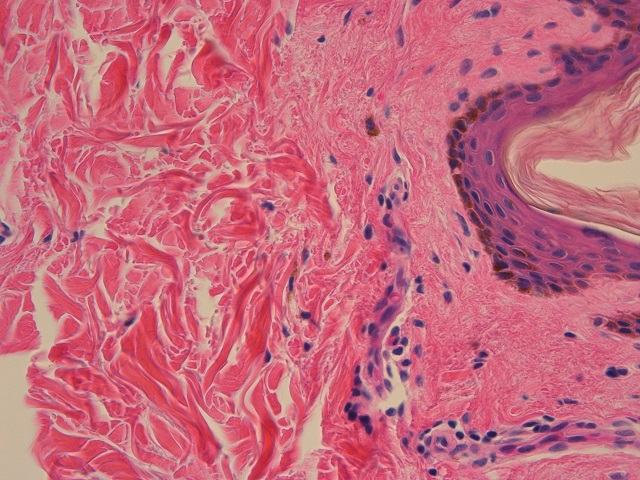 Microscopic skin stained with H&E