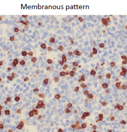 microscopic picture of tonsil stained with CD3 antibody