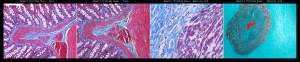 Histology slide pictures of Trichrome blue vs green