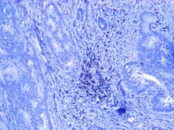 Human colon adenocarcinoma CD8 10x-4