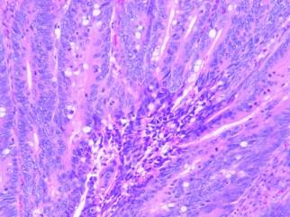 Human colon adenocarcinoma H&E 10x-2