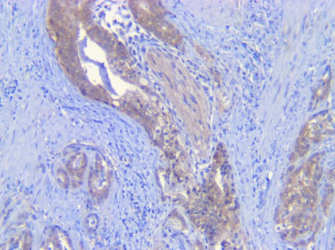 Human prostate cancer Beta-Catenin Ab