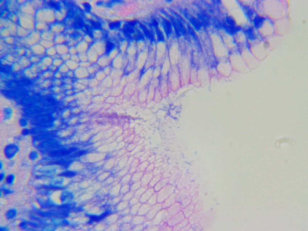 Human stomach - Giemsa stain for helicobacter pylori