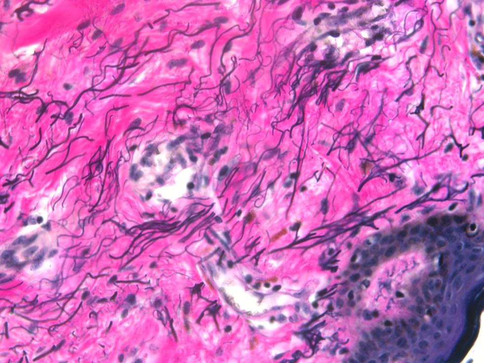 Human skin Verhoff Van Gieson stain for elastic fibers (black)