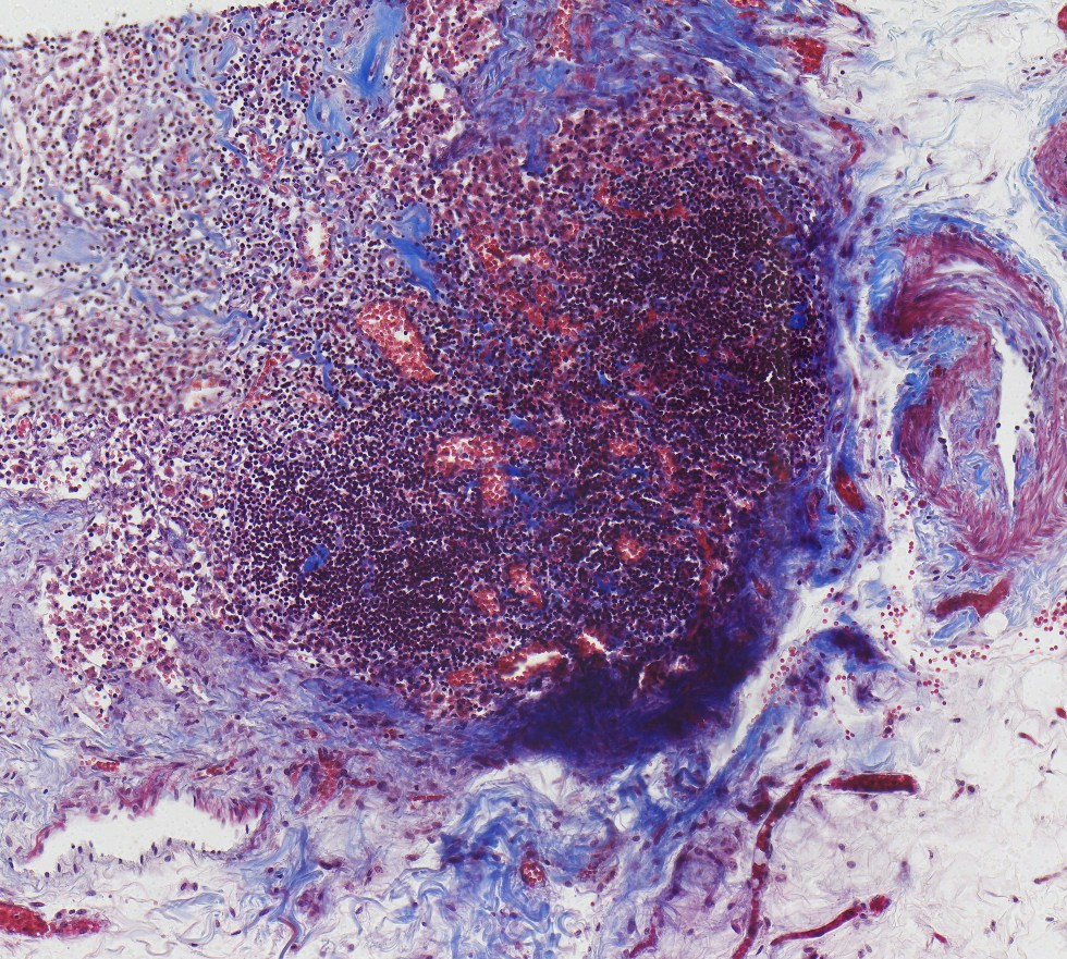 Lymph node - Masson's trichrome stain for collagen and muscle (blue & red)