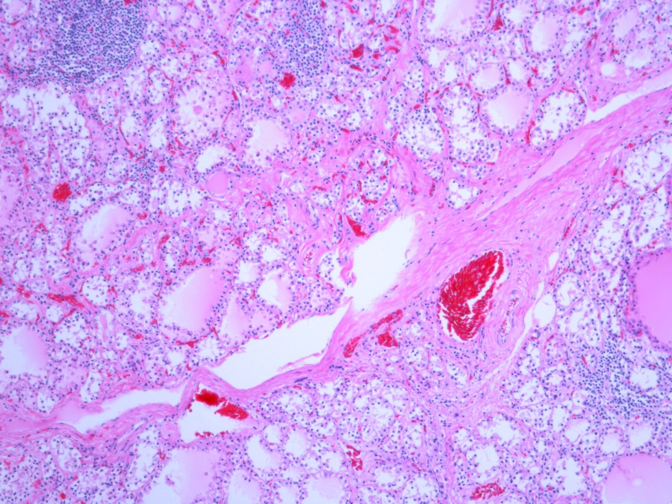 Human Thyroid H&E stain 10x