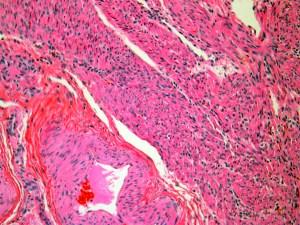Human Uterus H&E stain 20x