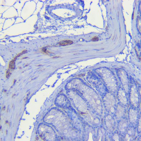 Mouse colon Synaptophysin antibody