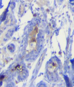 Human breast carcinoma Kappa Light Chain Antibody