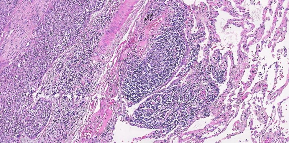 Human lung with fungus present H and E Stain