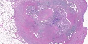 Mast cell block H and E Stain