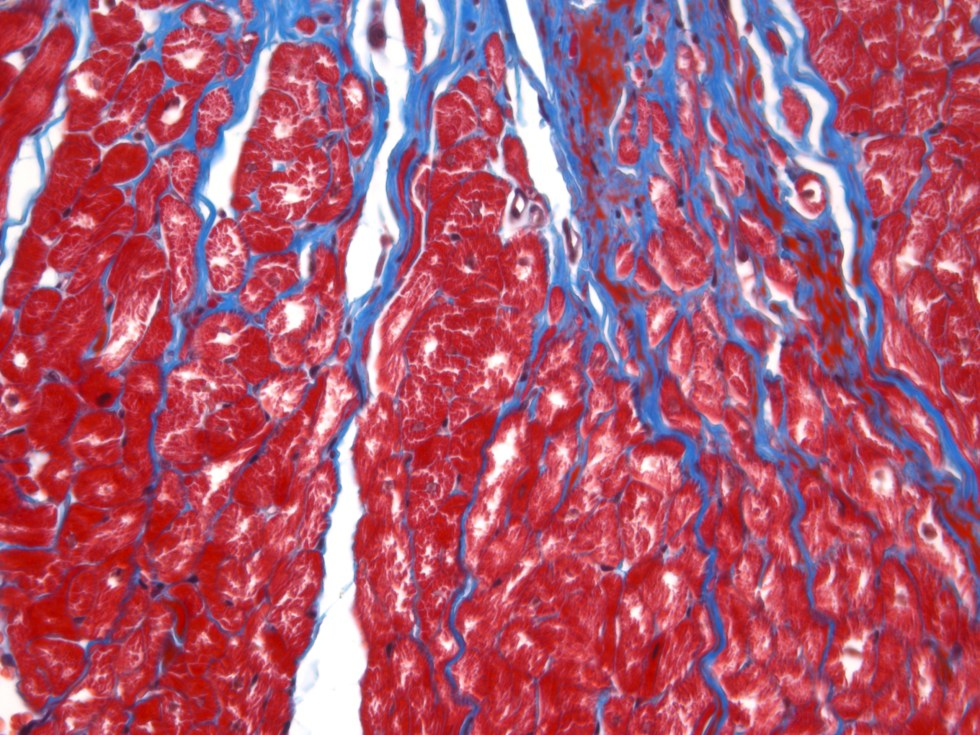 micrograph of dog heart stained with Masson's trichrome