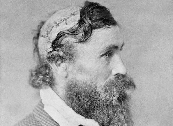 Robert McGee, gescalpeerd door Little Turtle (1864)
