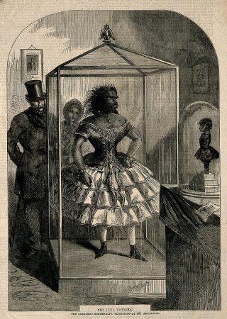 Julia Pastrana werd na haar dood tentoongesteld