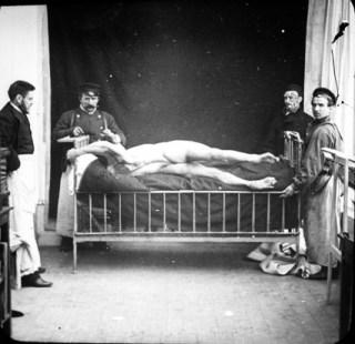 Afbeelding van rond 1900 van iemand met hysterie