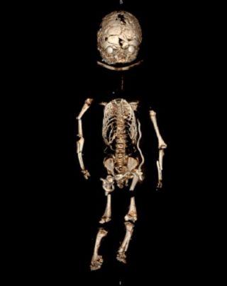 CT scan babypop (LUMC)