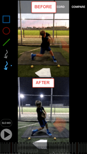 Baseball Batting Drills for Youth: Jace BEFORE/AFTER Neck Brace Drill