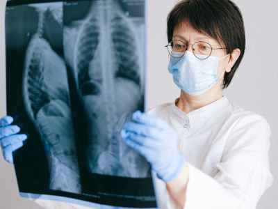 photo of doctor holding x ray result