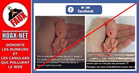 Non, un fœtus de 12 semaines dans l'utérus ne ressemble pas à cette photo !