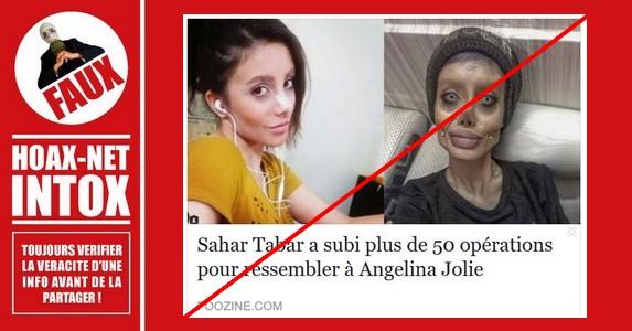 Non, Sahar Tabar n'a pas subi 50 opérations chirurgicales pour ressembler à son idole Angelina Jolie.