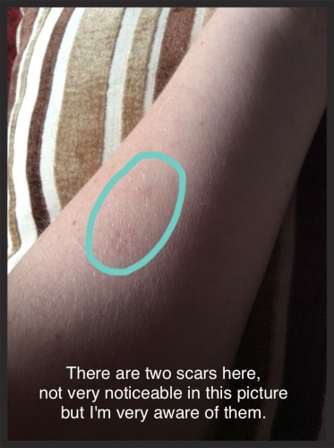 Cigarette burn scars