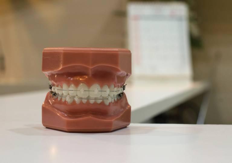 歯科矯正ブレース