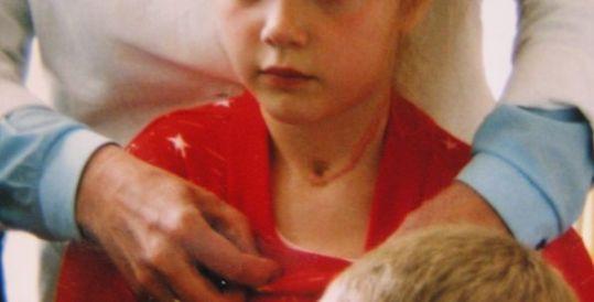 女の子の甲状腺がん手術跡