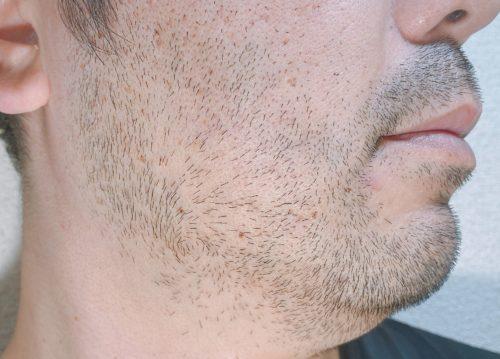 男性の右頬のヒゲが伸びた写真