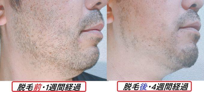 ビフォーアフター(脱毛前1週間ヒゲを伸ばした状態と照射2回、ヒゲ脱毛開始から4週後)