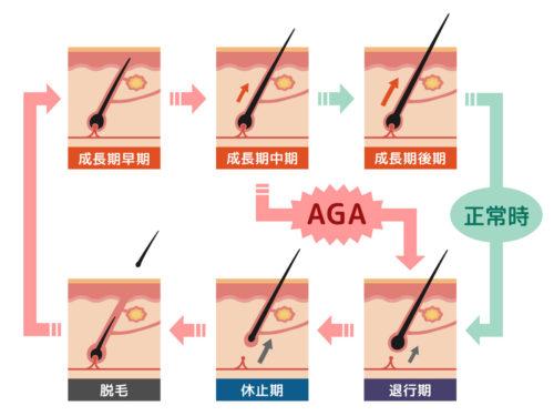 正常なヘアサイクルとAGA