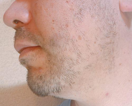 男性の左頬のヒゲが1週間伸びた状態