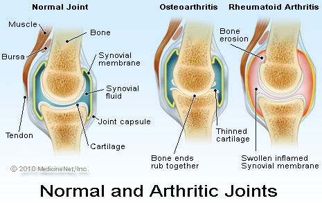 July is Juvenile Arthritis Awareness Month