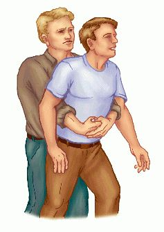 Heimlich Maneuver Day - Canine CPRHeimlich Maneuver recomendations for small dogs?