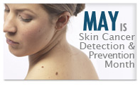Skin Cancer Detection & Prevention Month - May is Melanoma  Skin Cancer