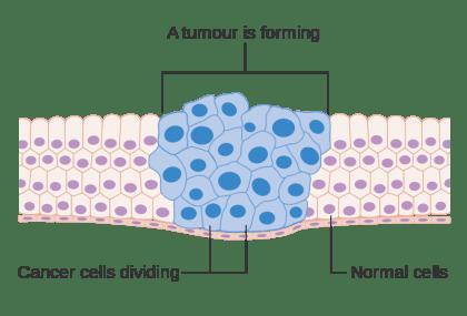 cancer diagram tumor cells dividing
