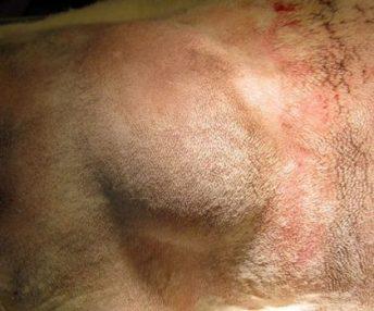 Lipoma-skin-tumor
