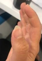 thumb nail photo