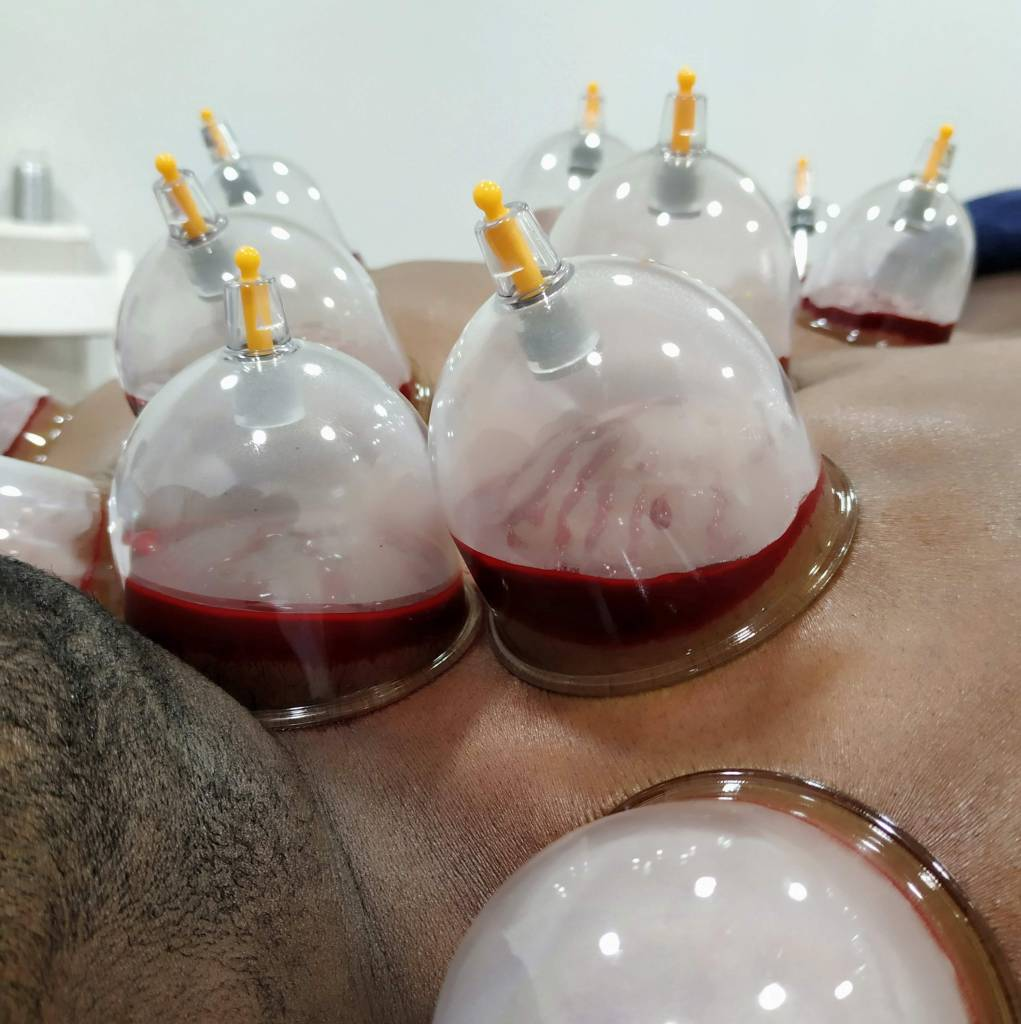hijama wet cupping